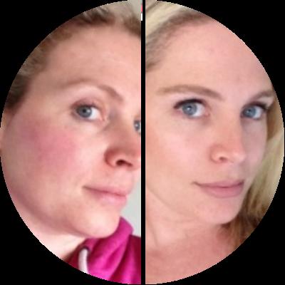 Hautrötung innerhalb von 2 Monaten beseitigt. - Karla (42 jahre alt)