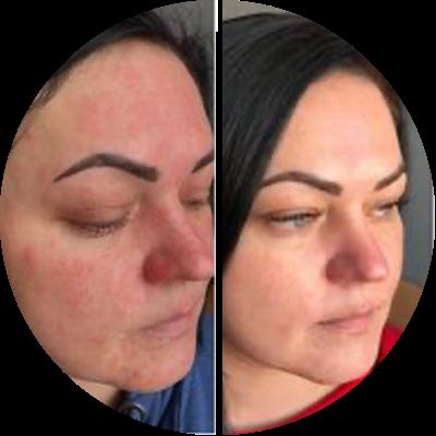 Offensichtliche Änderungen innerhalb einer Woche - Angela (44 jahre alt)